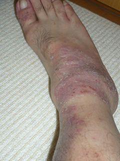 尋常性乾癬